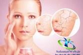درمان خشکی پوست با استفاده از روش های طبیعی
