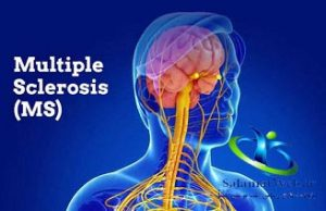 مولتیپل اسکلروزیس چیست؟