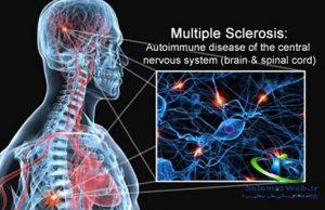درمان مولتیپل اسکلروزیس
