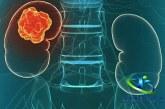 سرطان کلیه چیست؟+روش های تشخیص و درمان سرطان کلیه