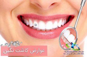 قیمت نگین دندان چسبی