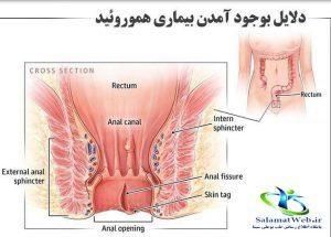 درمان هموروئید با لیزر