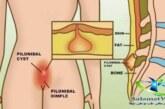 کیست مویی و علایم آن +روش های درمان کیست مویی