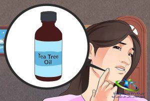 حساسیت پوست دست