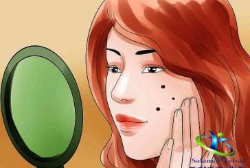 لک های قهوه ای پوست را با ضد لک های خانگی درمان کنید