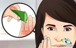 درمان خانگی حساسیت پوستی