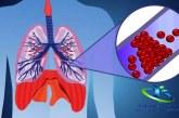 آمبولی چیست؟+انواع آمبولی و راه درمان آن
