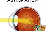 آستیگماتیسم چیست؟+روش های تشخیص و درمان آستیگماتیسم