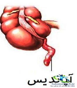 التهاب آپاندیس و درمان آن