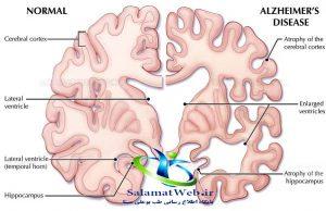 پیشگیری از ابتلا به آلزایمر