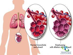 پرهوایی ریه چیست