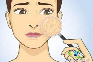 پوست خشک +روش های مراقبت و خلاص شدن از پوست خشک