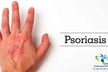 بیماری پسوریازیس +روش های کنترل و درمان این بیماری