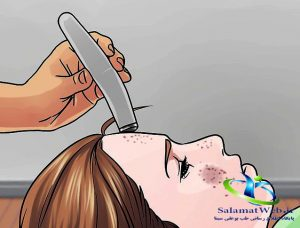 درمان جوش صورت با لیزر