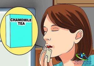 علت آفت دهان در بزرگسالان