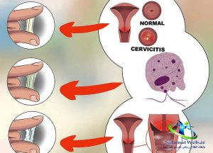 ترشحات سفید واژن قبل از پریودی