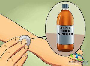 درمان جرب با سرکه سیب
