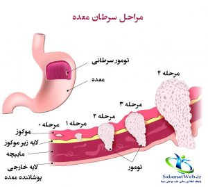 مراحل سرطان معده