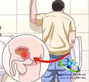 علایم سرطان پروستات