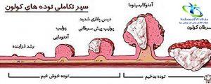 علت سرطان روده