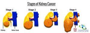 مرحله سرطان کلیه