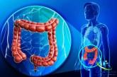 سرطان روده و نشانه های آن+روش های درمان سرطان روده