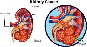 درمان سرطان کلیه