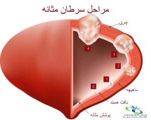 سرطان مثانه خوش خیم