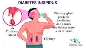 آیا دیابت بی مزه درمان قطعی دارد