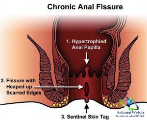 درمان زخم مقعدی در اثر یبوست