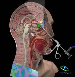 درمان سینوزیت کهنه