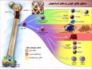 طول عمر بیماران سرطان مغز استخوان