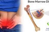 سرطان مغز استخوان چیست؟+طول عمر بیماران سرطان مغز استخوان