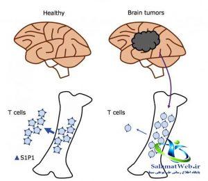 راه تشخیص سرطان مغز استخوان