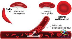 علائم سردرد کم خونی