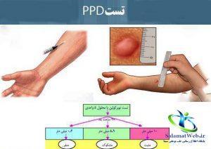 تشخیص بیماری سل