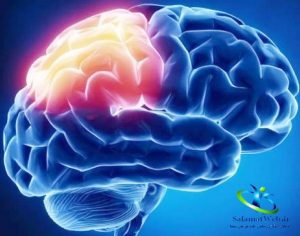 سرطان مغز
