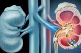 بیماری سنگ کلیه و انواع آن+درمان سنگ کلیه با طب ابوعلی سینا