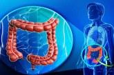 بیماری کولیت روده و انواع آن +معرفی روش های درمان کولیت روده