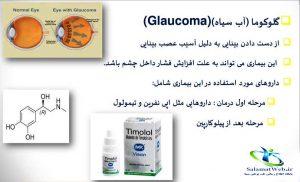 درمان جدید گلوکوم