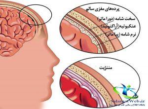 عوارض بیماری مننژیت چیست؟