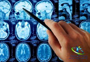 ویژگی سردردهای تومور مغزی