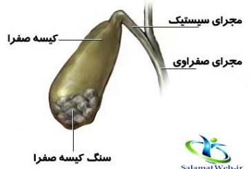 بیماری سنگ کیسه صفرا+آیا سنگ کیسه صفرا خطرناک است؟