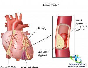 علائمسکته قلبیقبل از وقوع