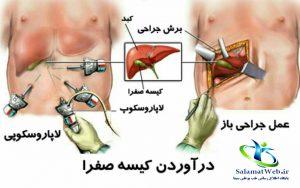 درمان جراحی سنگ کیسه صفرا