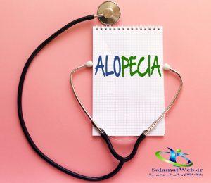 علت آلوپسیا