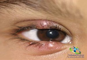 انواع بیماری گل مژه