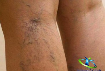 بیماری واریس چیست؟+درمان سریع و قطعی واریس پا