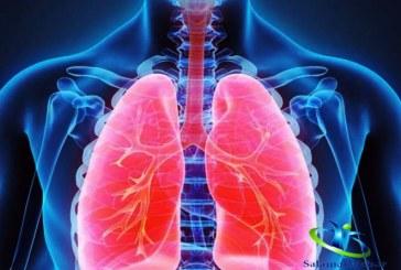 آب آوردن ریه از علت تا درمان+درمان این عارضه با طب ابوعلی سینا
