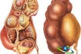 هیدرونفروز کلیه چیست؟+درمان گیاهی هیدرونفروز کلیه
